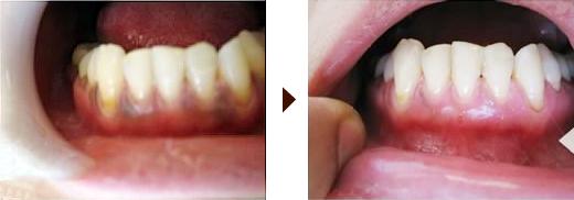 Gum-bleaching